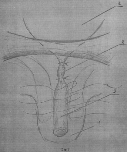 Способ хирургического лечения эписпадии у лиц мужского пола