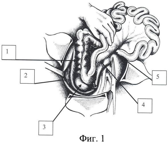 Способ доступа к забрюшинным органам и структурам панкреато-дуоденальной зоны при травме живота