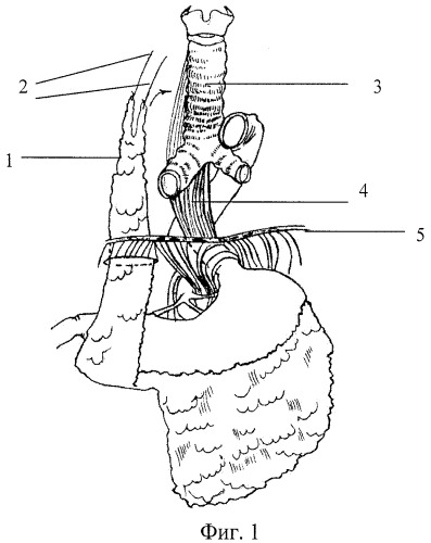 Способ хирургического лечения трахеопищеводных свищей неопухолевого генеза