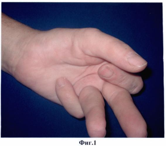 Способ лечения тяжелой формы контрактуры дюпюитрена пальцев кисти