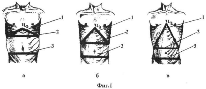 Способ определения функционально-морфологического типа человека