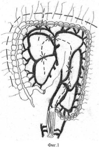Способ резекции толстой кишки при субтотальной форме болезни гиршпрунга