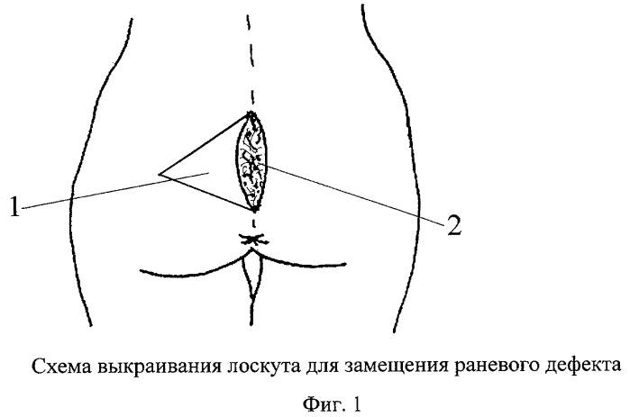 Способ лечения эпителиального копчикового хода
