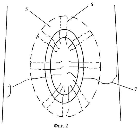 Способ герниопластики при больших и гигантских послеоперационных грыжах по а.л. чарышкину