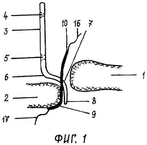 Способ хирургического лечения при вывихе акромиального конца ключицы