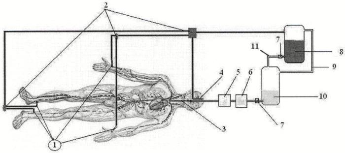 Способ введения консервирующего раствора в сосудистую систему трупа при бальзамировании