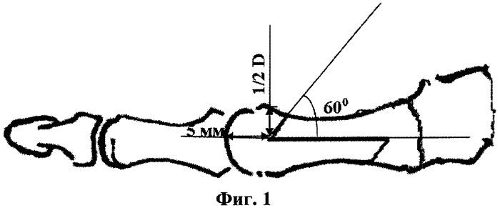 Способ лечения деформации первого пальца стопы