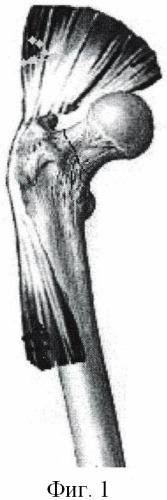 Способ эндопротезирования тазобедренного сустава при высоком врожденном вывихе бедра