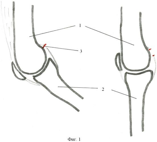 Способ лечения врожденной сгибательной контрактуры коленного сустава у детей при гипо- и аплазии сгибателей голени