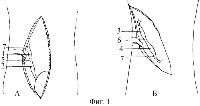 Способ моделирования инфицированного уретерогидронефроза