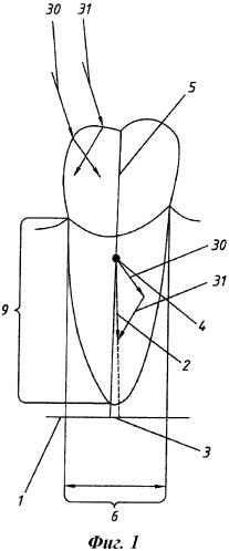 Способ прогнозирования осложнений после протезирования зубов с вторичной адентией