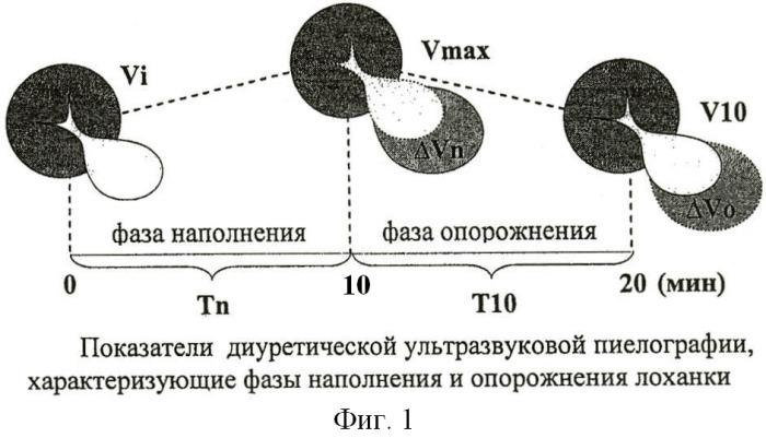 Способ диагностики нарушений уродинамики расширенной лоханки у детей с гидронефрозом