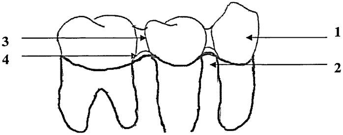 Способ изготовления временных зубных протезов