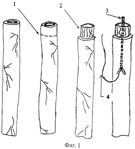 Способ лечения пузырно-мочеточникового рефлюкса при уретерогидронефрозе
