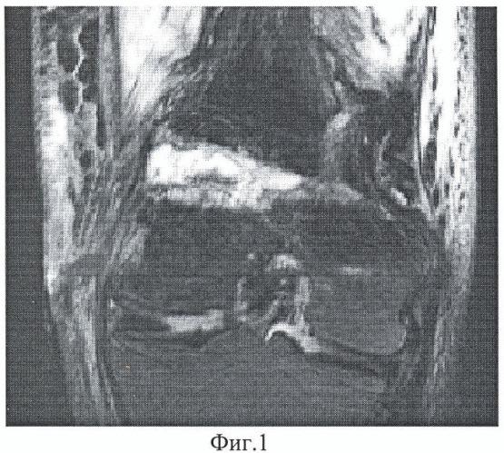 Способ диагностики зрелости дистракционного костного регенерата