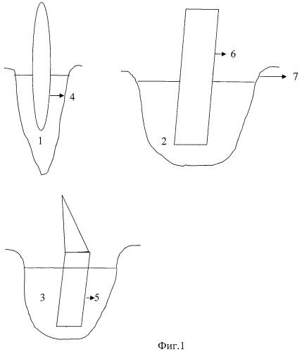 Способ фиксации зубных протезов на имплантатах