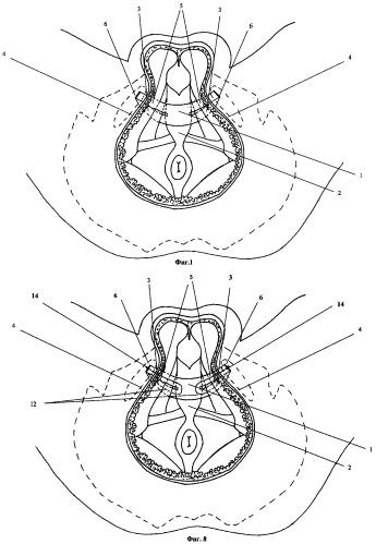 Имплантируемое устройство для хирургического лечения недержания мочи (варианты)
