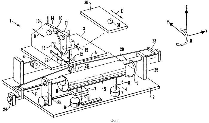 Способ изготовления трубчатого медицинского имплантата