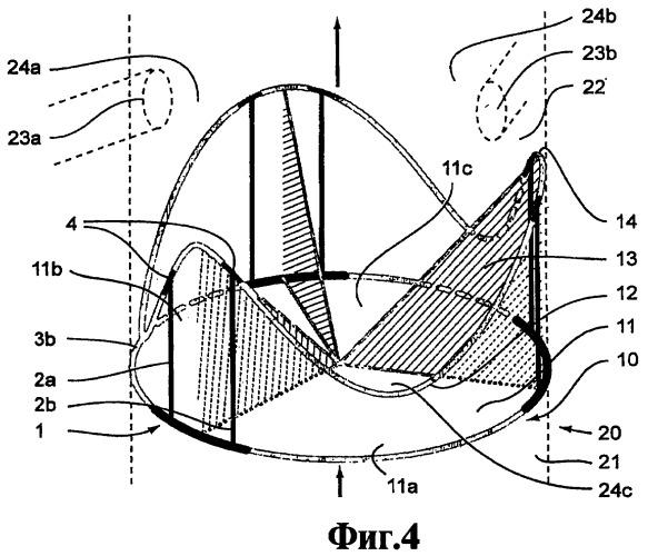 Внутристеночный опорный каркас биопротеза клапана сердца и биопротез клапана сердца