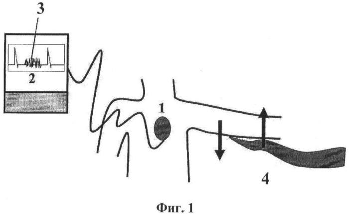 Способ программирования чувствительности к r-волне в аппаратах для подкожного мониторирования электрокардиограммы