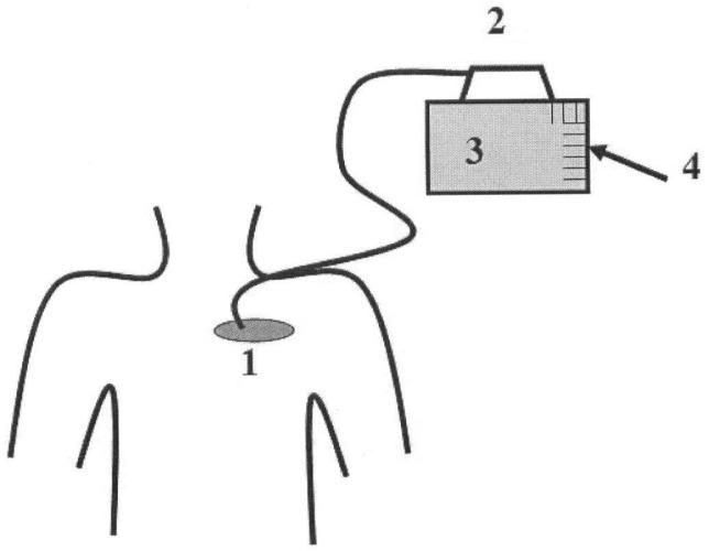 Способ лечения феномена мышечной стимуляции у пациентов с имплантированными электрокардиостимуляторами
