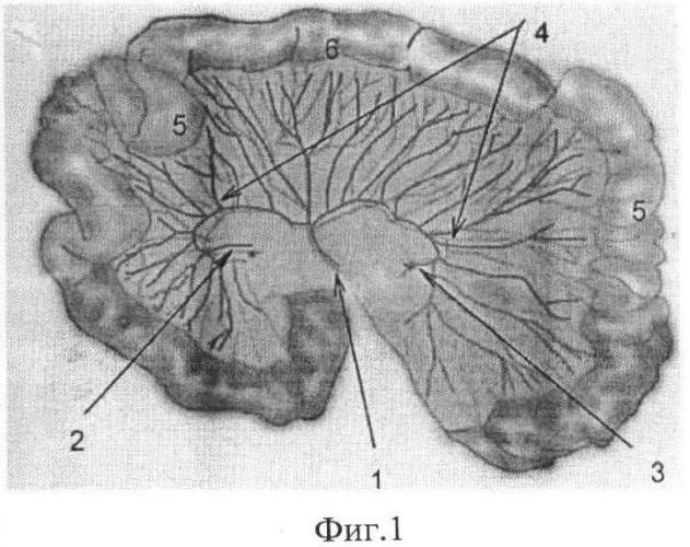 Способ формирования тонкокишечно-брыжеечного аутотрансплантата