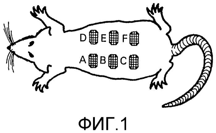 Фармацевтическая композиция в виде микросфер для профилактики ампутации конечностей при диабете