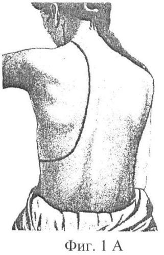 Способ отсроченной коррекции плевральной полости после резекции легких