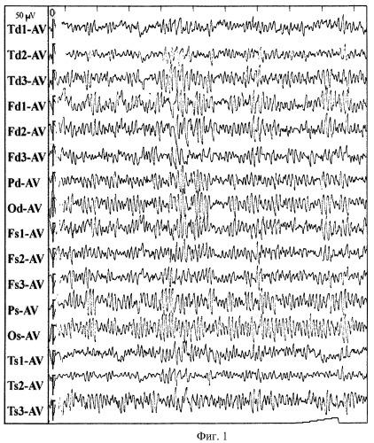 Способ хирургического лечения артериовенозных мальформаций головного мозга, проявляющихся эпилептическим синдромом