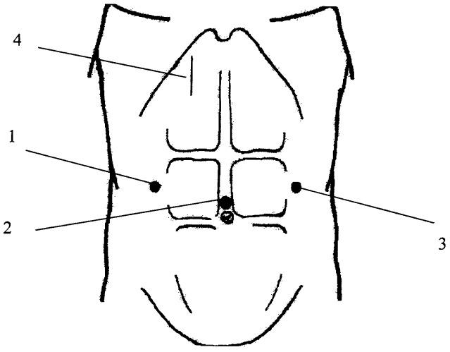 Способ видеоассистированного ушивания перфоративных гастродуоденальных язв
