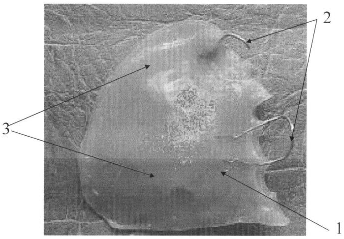 Способ изготовления разобщающего послеоперационного челюстного протеза для верхней челюсти