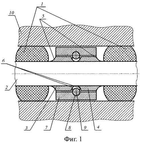 Резинометаллический шарнир для гусеничной цепи транспортного средства (варианты)