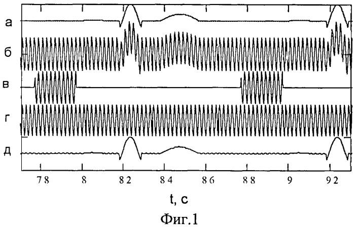 Способ подавления влияния аддитивной помехи на электрокардиосигнал и устройство для его осуществления