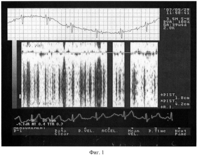 Устройство неинвазивной диагностики состояния плода в дородовый период