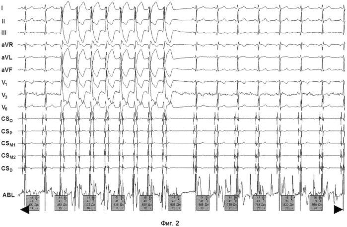Способ радиочастотной аблации очага эктопической тахикардии в выводном отделе левого желудочка