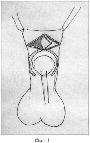 Способ хирургического лечения дистальной гипоспадии у мальчиков