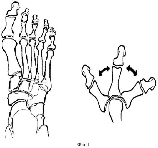 Способ оперативного лечения деформации переднего отдела стопы