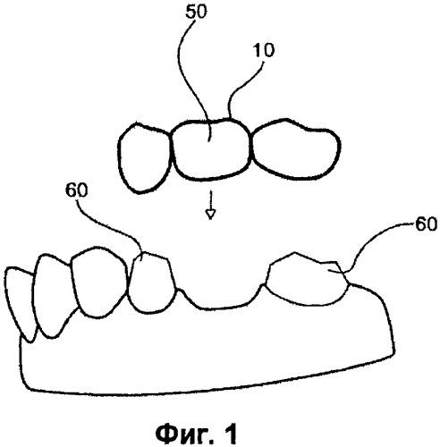 Зубное протезирующее устройство и его элементы