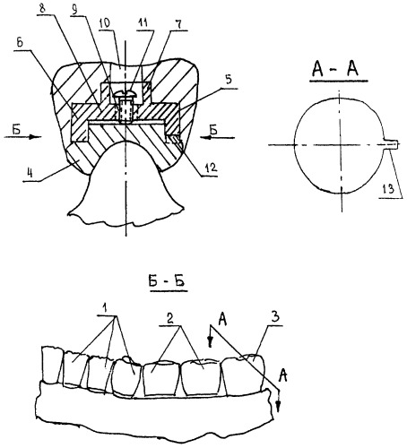 Способ замещения зубного ряда с концевым дефектом несъемным мостовидным протезом и несъемный мостовидный протез для замещения зубного ряда с концевым дефектом