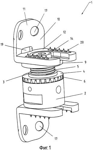 Имплантат для установки между телами позвонков позвоночника
