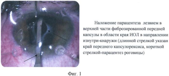 Способ мобилизации интраокулярной линзы для удаления вторичной катаракты с использованием бимануальной автоматизированной системы аспирации-ирригации при наличии фимоза переднего капсулорексиса