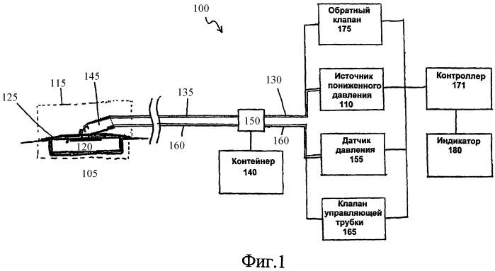 Система и способ управления пониженным давлением на участке ткани