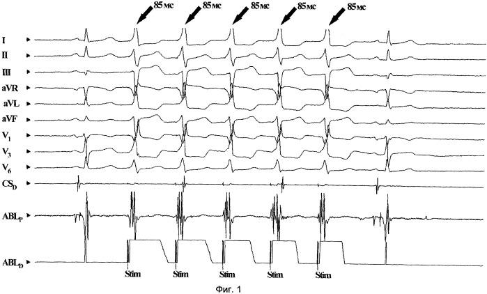 Способ радиочастотной аблации очага эктопической тахикардии в парагисиальной области