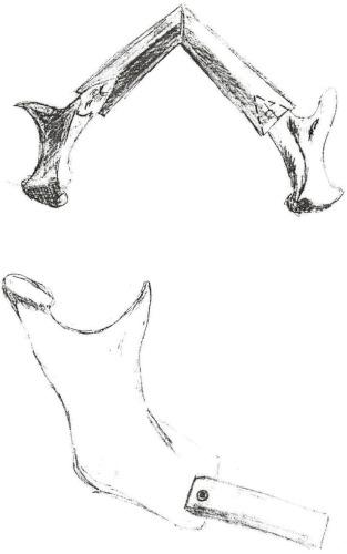 Способ фиксации костной части трансплантата к фрагментам нижней челюсти