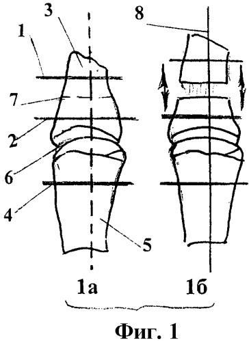 Способ удлинения коротких культей пальцев кисти