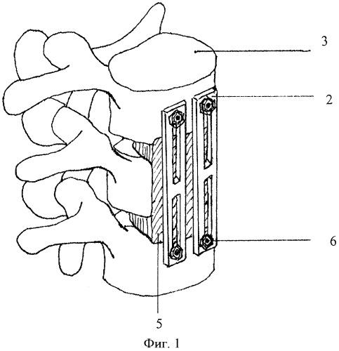 Способ фиксации нестабильных повреждений позвоночника