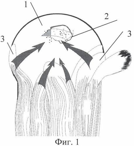 Способ хирургического лечения массивных застарелых разрывов сухожилий ротаторной манжеты плеча