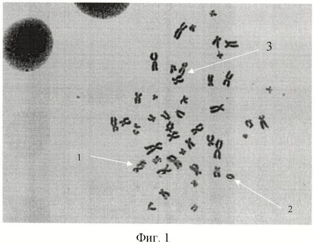 Способ выявления пациентов, облученных малыми дозами ионизирующей радиации