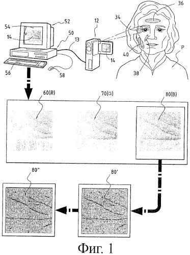 Способ и аппарат для определения характера дефектов кожи и метод оценки эффекта косметического средства против старения кожи