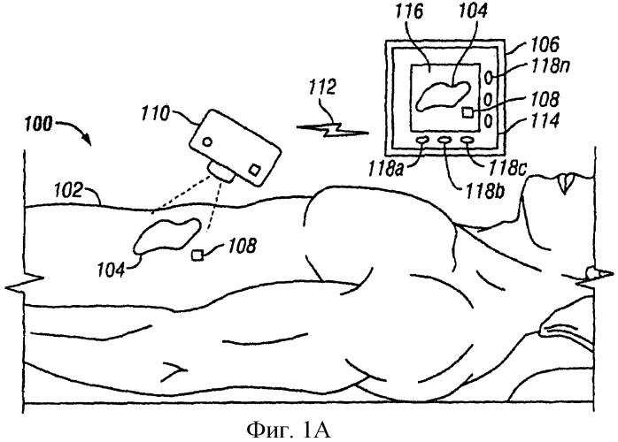 Система и способ слежения за процессом заживания ткани
